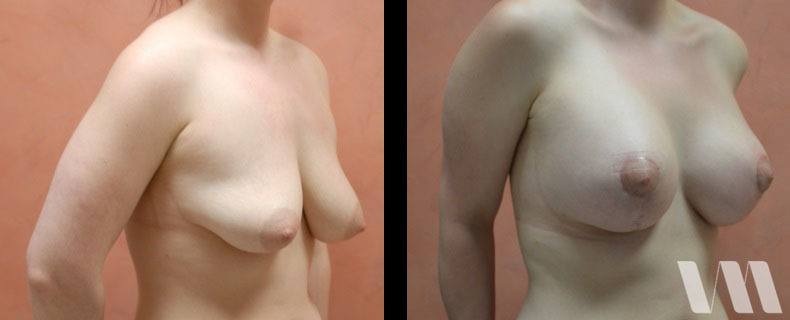 Breast lift and implants patient